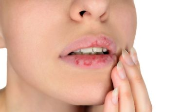 Dermatillomania skin picking. Woman has bad habit to pick her lips. Harmful addiction based on anxiety stress and dry lips. Excoriation disorder. Sick cracked damaged tissue.